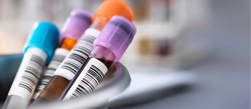 klinische trial